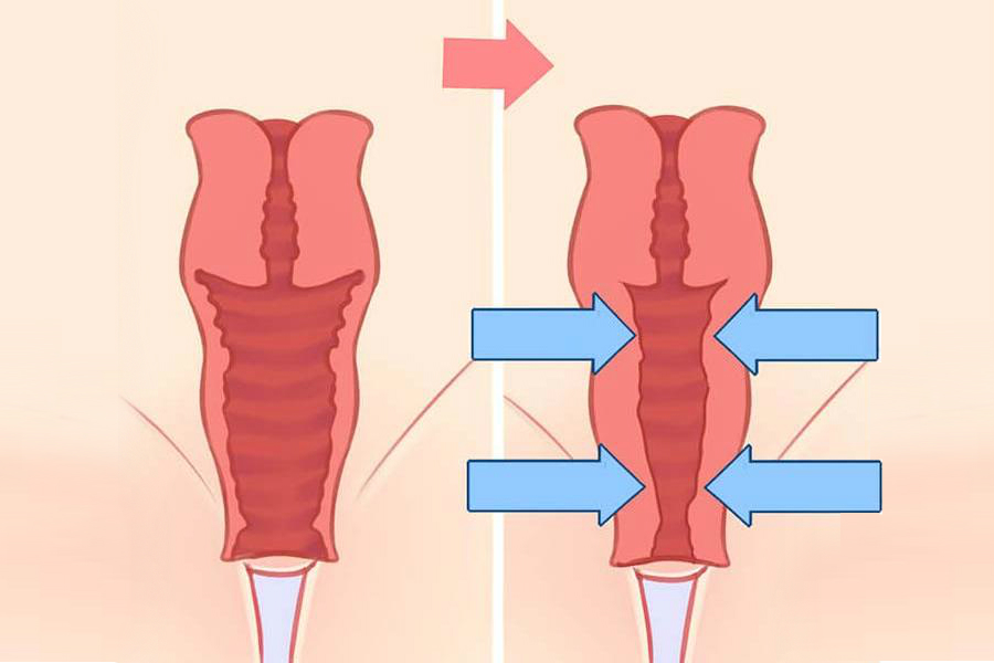 пластика вагины